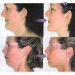 Réducteur de Double Menton et Massage de Cou Sbelt Neck Slimmer